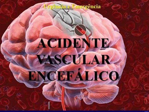 Curso Online de Acidente Vascular Encefálico 50 slides
