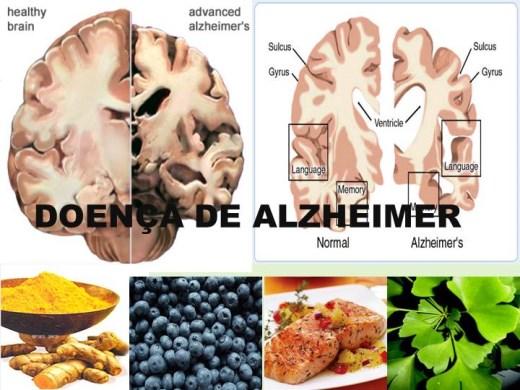 Curso Online de Doença de Alzheimer