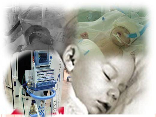 Curso Online de Oxigenoterapia pediatrica, CPAP e oxirud