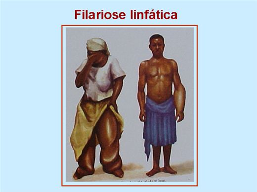 Curso Online de Filariose Linfática Parasitologia