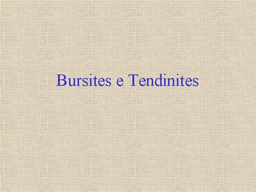 Curso Online de Bursites e Tendinites: Definição,Avaliação e Tratamento Fisioterápico