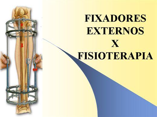 Curso Online de Fixadores Externos X Fisioterapia
