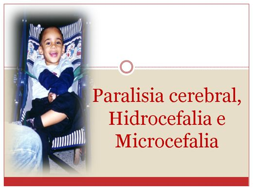 Curso Online de Paralisia cerebral, Hidrocefalia e Microcefalia