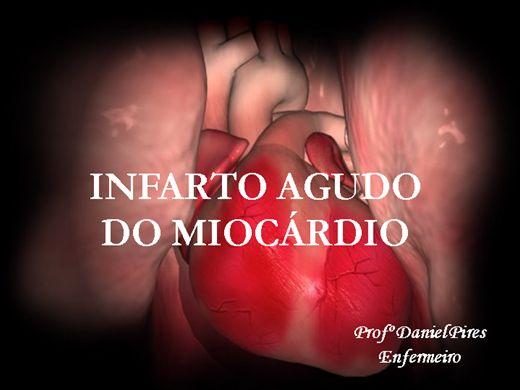 Curso Online de INFARTO AGUDO DO MIOCÁRDIO - IAM
