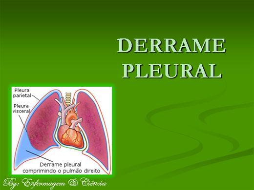 Curso Online de Derrame Pleural