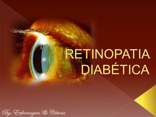 Curso Online de Retinopatia Diabética