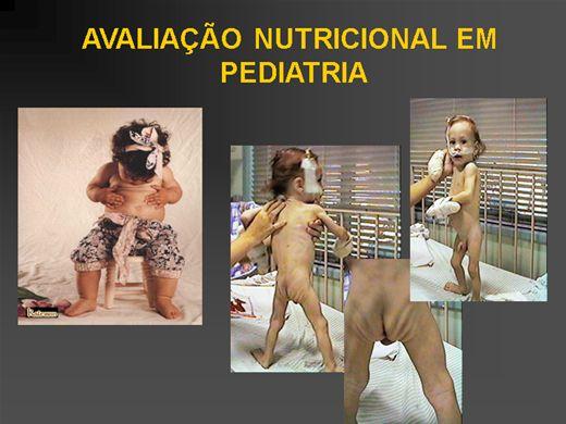 Curso Online de AVALIAÇÃO NUTRICIONAL EM PEDIATRIA