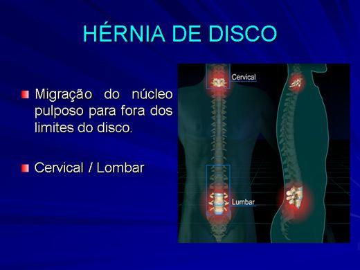 Curso Online de Hérnia de Disco