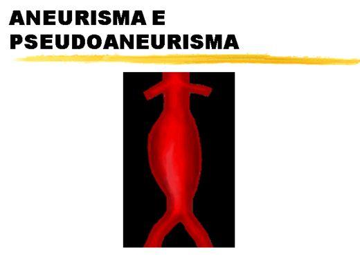 Curso Online de ANEURISMA E PSEUDOANEURISMA