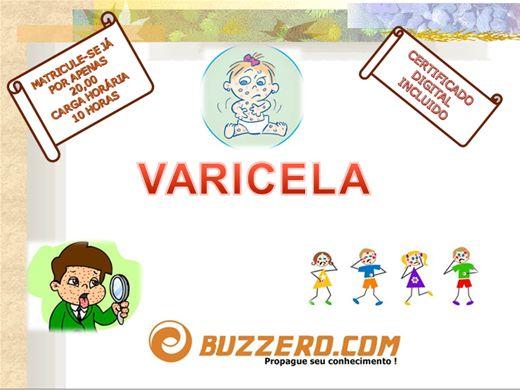 Curso Online de VARICELA