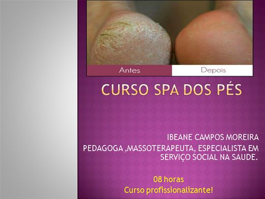 Curso Online de SPA DOS PES