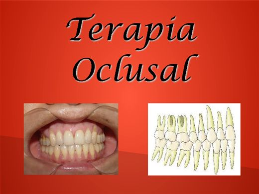 Curso Online de Terapia Oclusal