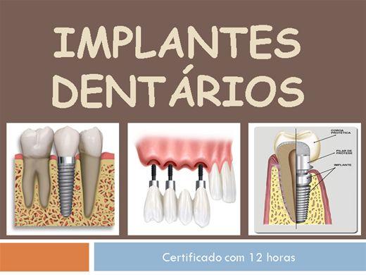 Curso Online de Implantes Dentários