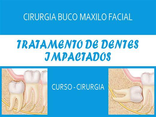 Curso Online de Tratamento de Dentes Impactados