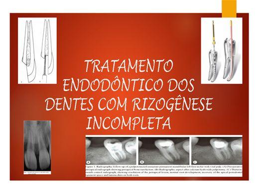 Curso Online de Tratamento Endodôntico em Dentes com Rizogênese Incompleta