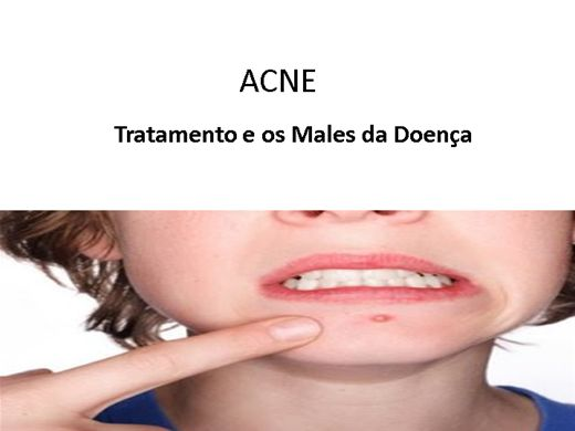 Curso Online de Acne - Doença e Tratamento