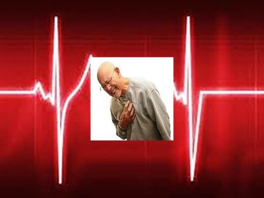 Curso Online de Arritmia Cardíaca