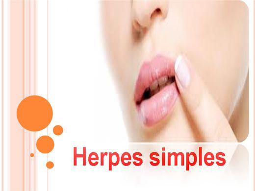 Curso Online de herpe simples