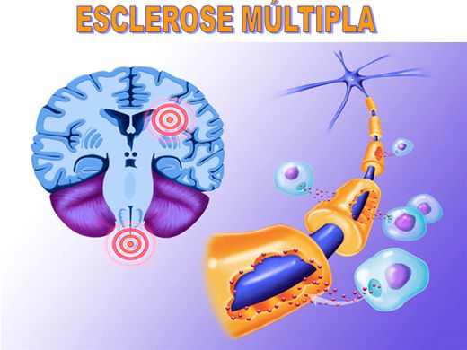 Curso Online de Esclerose Múltipla