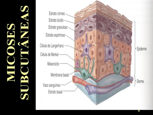 Curso Online de MICOSES SUBCUTÂNEAS