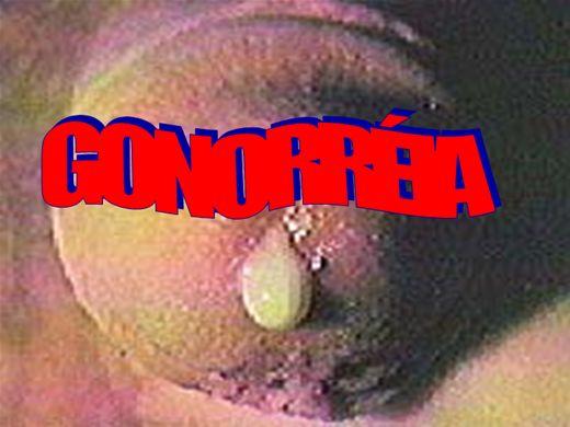Curso Online de URETRITE GONOCÓCICA