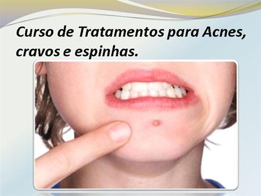 Curso Online de Tratamentos para Acnes,  cravos e Espinhas