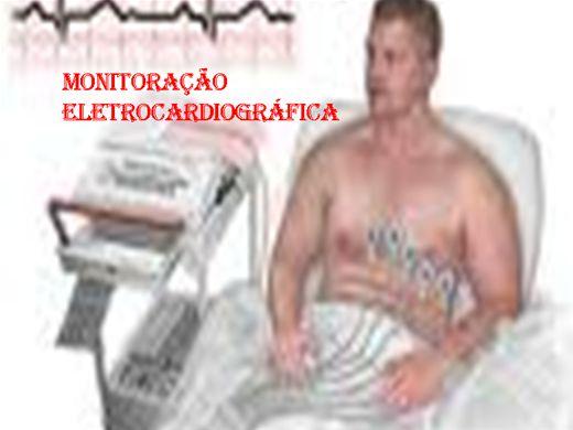 Curso Online de Monitoração Eletrocardiográfica
