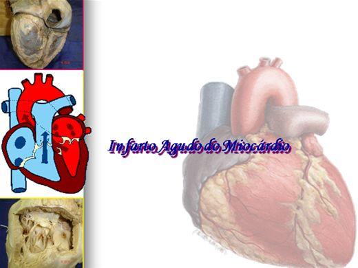 Curso Online de Infarto agudo do miocardio
