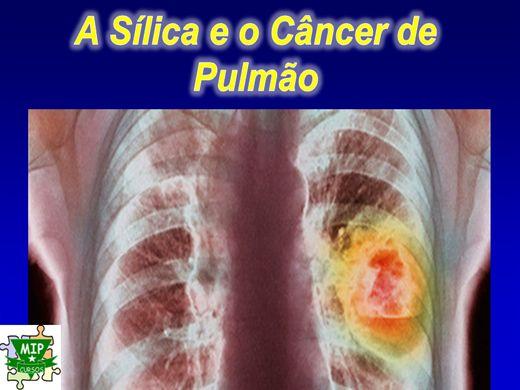 Curso Online de Sílica e o Câncer de Pulmão