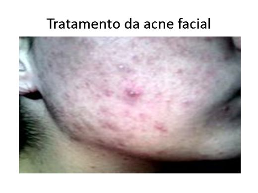 Curso Online de tratamento da acne facial