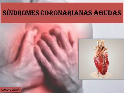 Curso Online de SINDROMES CORONARIANAS AGUDAS