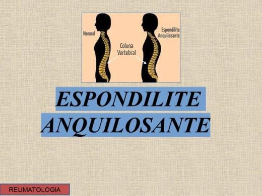 Curso Online de Espondilite Anquilosante