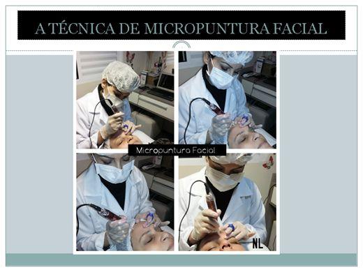 Curso Online de Micropuntura Facial