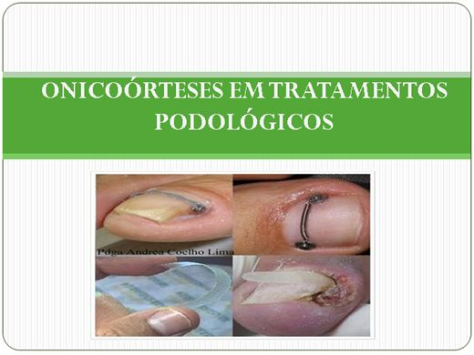 Curso Online de Onicoórteses em Tratamentos Podológicos