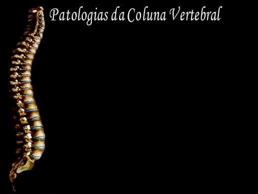 Curso Online de Patologias da coluna vertebral