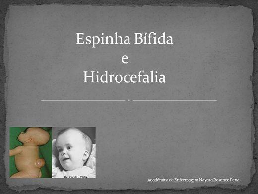 Curso Online de Espinha bífida e Hidrocefalia