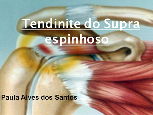 Curso Online de TENDINITE do supra espinhoso