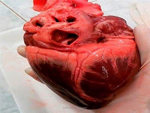 Curso Online de Sistema cardiovascular