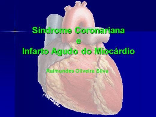 Curso Online de Síndrome Coronariana e Infarto Agudo do Miocárdio