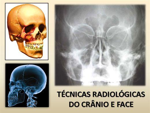 Curso Online de Técnicas Radiológicas do Crânio e Face