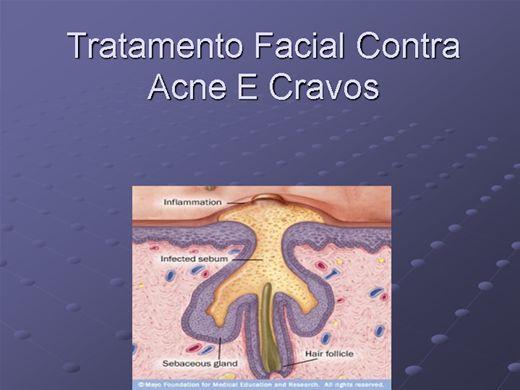 Curso Online de Tratamento Facial Contra Acne E Cravos