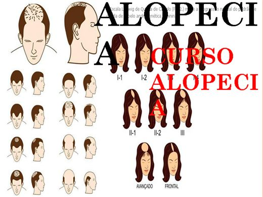 Curso Online de CURSO ALOPECIA
