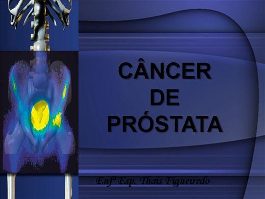 Curso Online de Câncer De Próstata