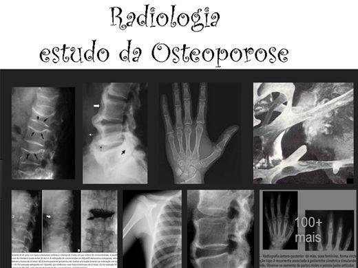 Curso Online de Radiologia - estudo da Osteoporose