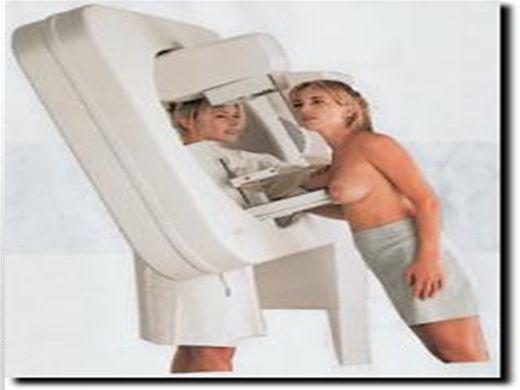 Curso Online de Mamografia
