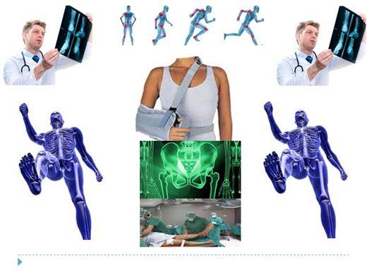 Curso Online de Radiologia - Estudo De Fraturas