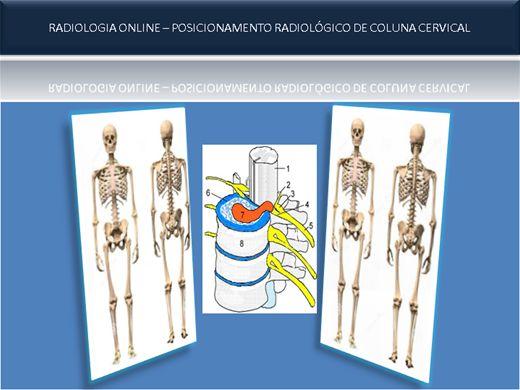 Curso Online de RADIOLOGIA ONLINE Posicionamento Radiológico De Coluna Cervical
