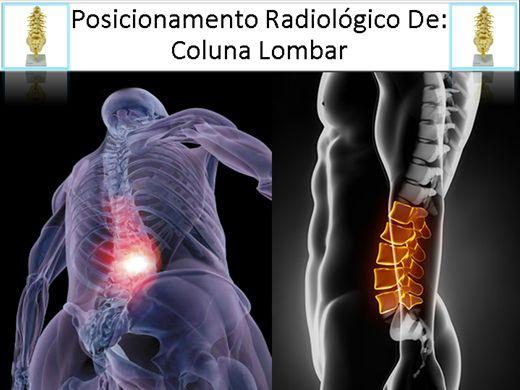 Curso Online de RADIOLOGIA - Posicionamento Radiológico Da Coluna Lombar