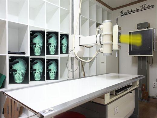 Curso Online de Radiologia - Especialista em Crânio e Seios da Face