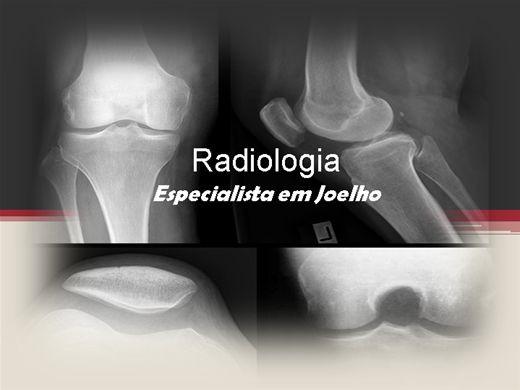 Curso Online de Radiologia - Especialista em Posicionamento Radiológico do Joelho, Patela e Fossa intercondilar